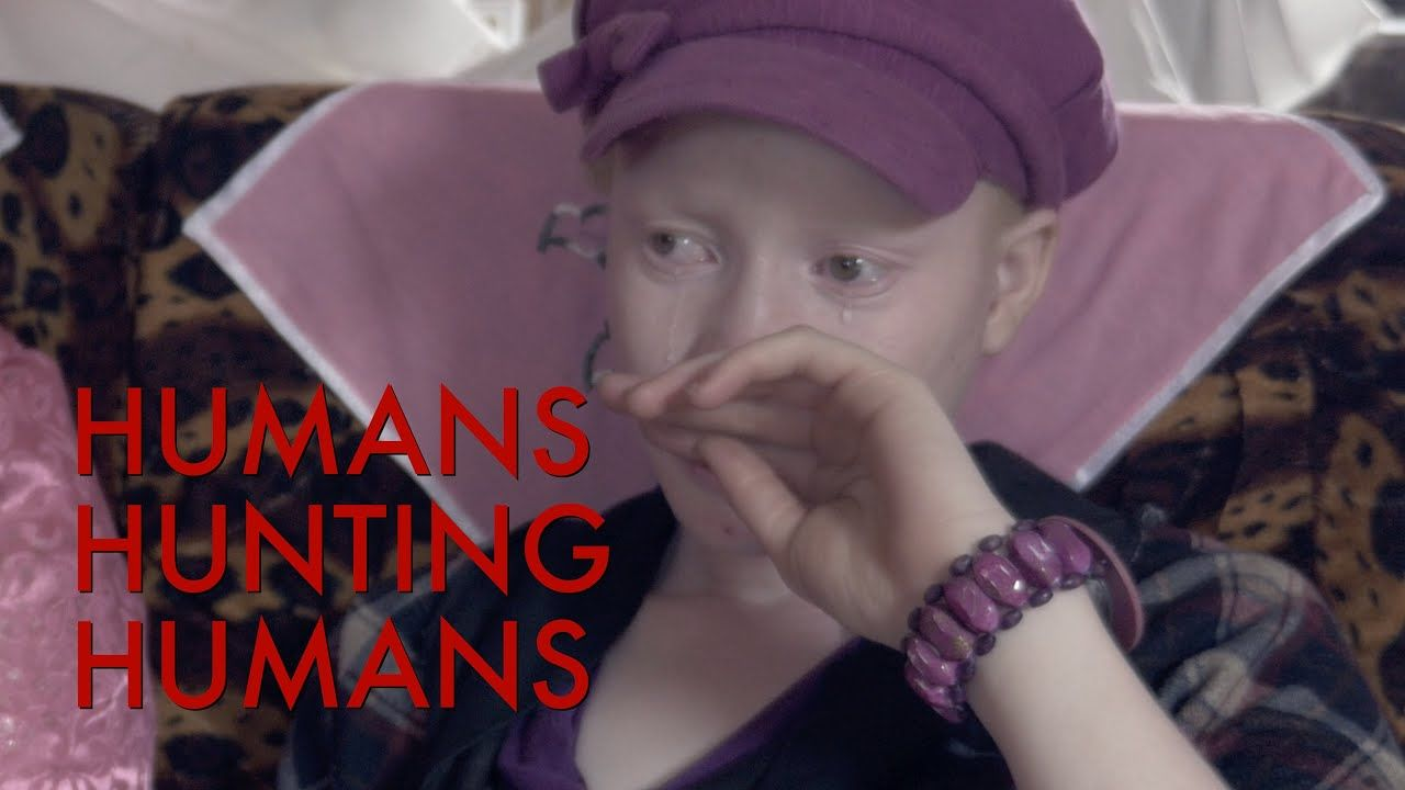 Humans Hunting Humans - The Murder of Albinos in Tanzania